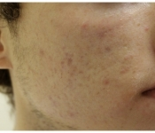 SkinPen Microneedling Results: Four weeks after one treatment - Facial