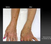Brown Spots Treatment: Arms