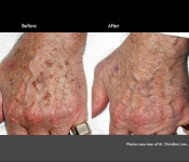 Brown Spots Treatment: Hands