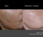 Facial Brown Spots Treatments in Columbus