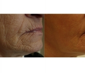 Fractioned laser treatments improve wrinkles, brown spots, and acne scarring