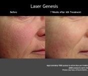 Laser Facial Procedures - Before and After