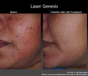 Dr. Nina Deep performs Laser Facial treatments