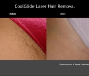 Laser Hair Removal in Columbus, OH