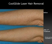 Laser Hair Removal on the Arm