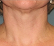 SkinPen Microneedling - Neck (after one treatment - front view)