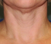 SkinPen Microneedling - Neck (before treatment - front view)