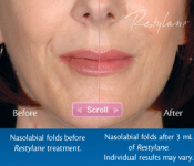 Restylane and Perlane - Before and After