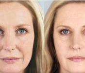 Sculptra Facial Volume Enhancing Procedure in Columbus Ohio