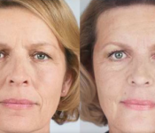 Sculptra - Facial Procedure - Before and After
