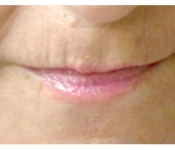 After two microneedling treatments to improve lip lines