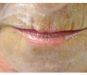 Before second treatment for lip lines