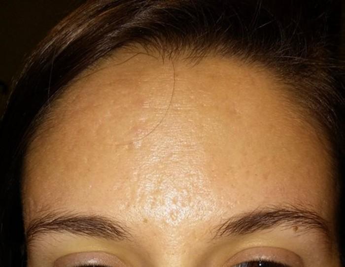 Skinpen Microneedling Treatments In Columbus Dr Nina Deep