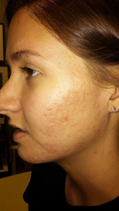 SkinPen Microneedling Treatments in Columbus - Dr  Nina Deep