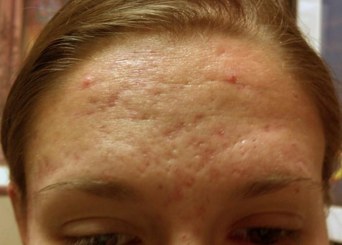 Severe Acne Scars Treatment SkinPen Microneedling ...