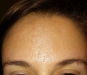 SkinPen Microneedling: Acne Scar Treatment - After 4 treatments - Forehead