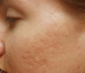 SkinPen Microneedling: Acne Scar Treatment - After 5 treatments