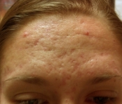 SkinPen Microneedling: Acne Scar Treatment - Before - Forehead