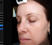 Microneedling treatment for aging skin (before)