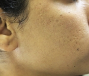 After five microneedling treatments to improve acne scarring