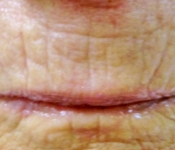 After one microneedling treatment to improve lip lines