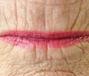 Before microneedling treatment for lip lines