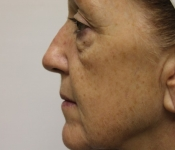 Microneedling mouth fold treatment - Side view of patient after treatment