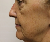 Microneedling mouth fold treatment - Side view of patient