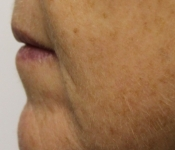Microneedling mouth fold treatment - Close up view of patient after one treatment