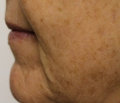 Microneedling mouth fold treatment - Before close up