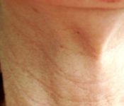 Neck lines visible before treatment