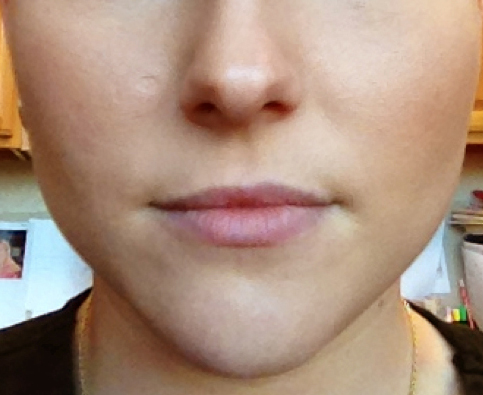 SkinPen Microneedling Treatments in Columbus - Dr. Nina Deep