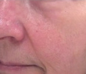 Improvement in Facial Concerns after SkinPen Microneedling Treatment