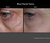 Spider Vein Treatments - Dr. Nina Deep - Columbus, Ohio Medical Spa