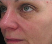 3 Months after a SkinPen Microneedling treatment by Dr. Deep