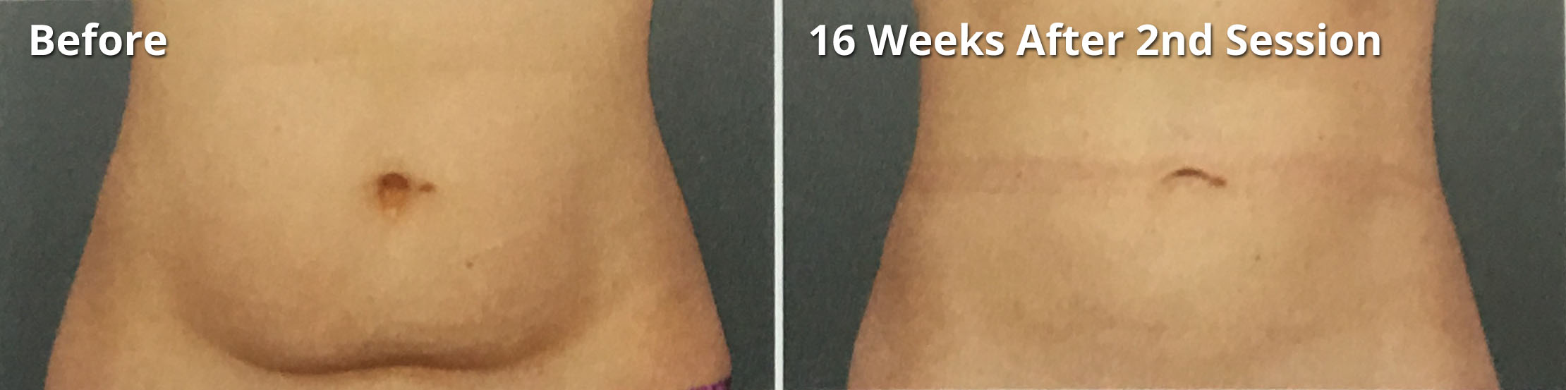Coolsculpting - Non-surgical fat removal procedure performed by Nina Deep Aesthetics in Columbus, Ohio