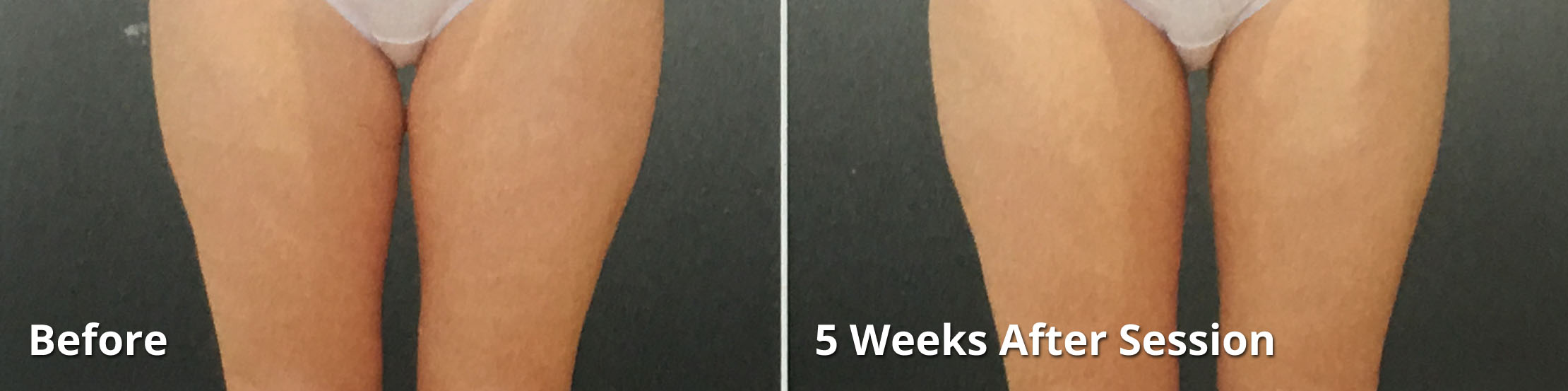 Coolsculpting - Before and After of thigh fat reduction