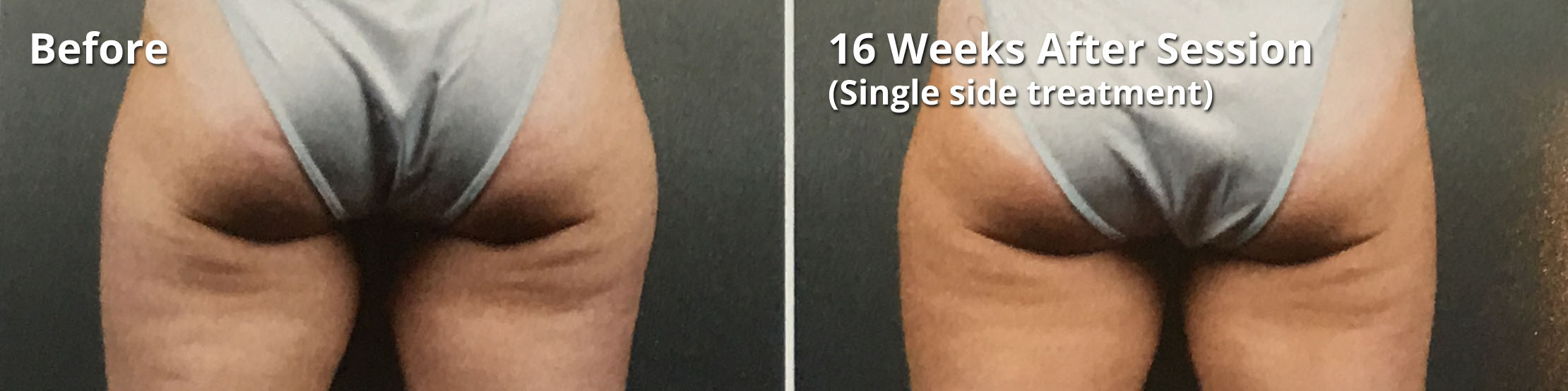 Coolsculpting - 16 week treatment - before and after procedure