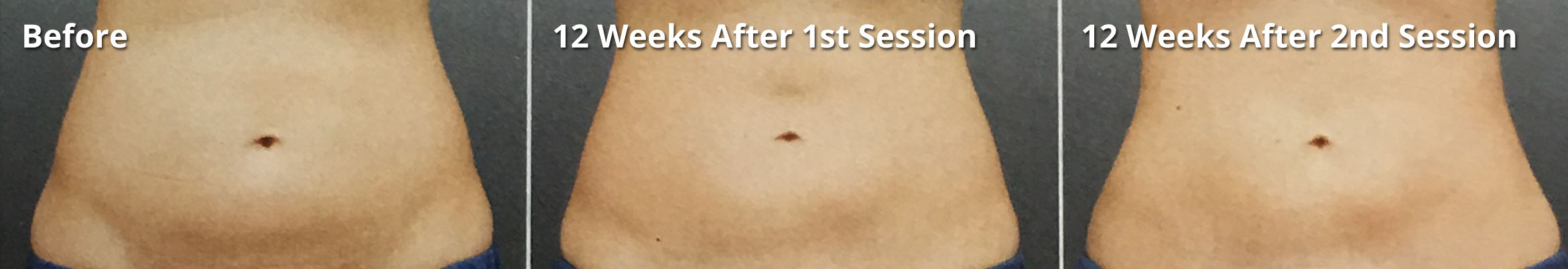 Coolsculpting - Stomach fat removal - Before and after