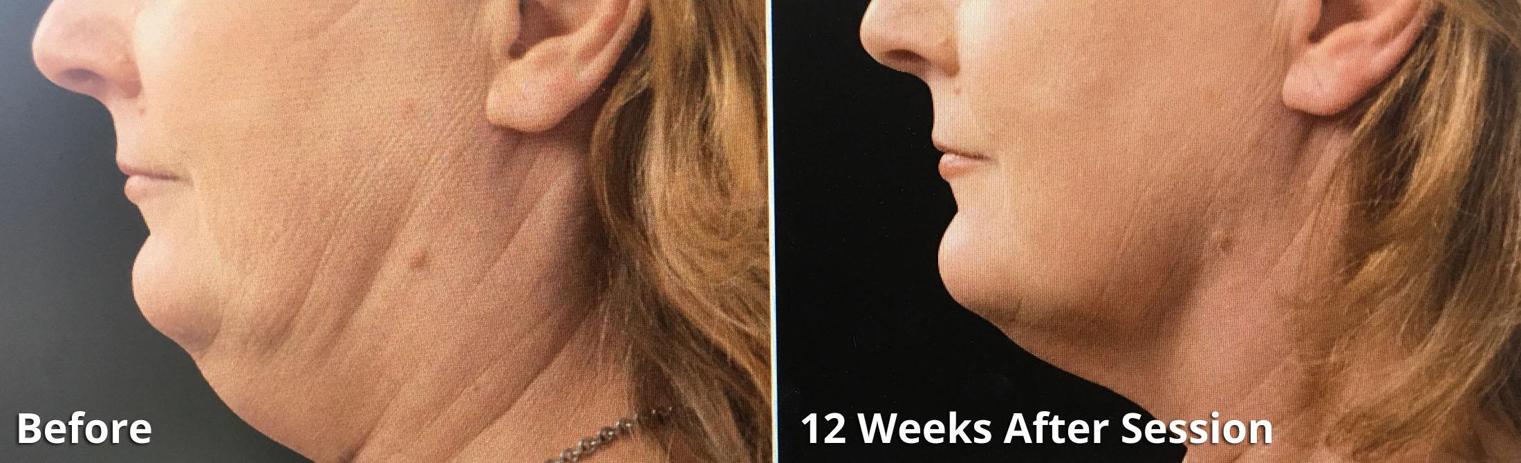 Coolsculpting - Non-surgical Facial fat reduction